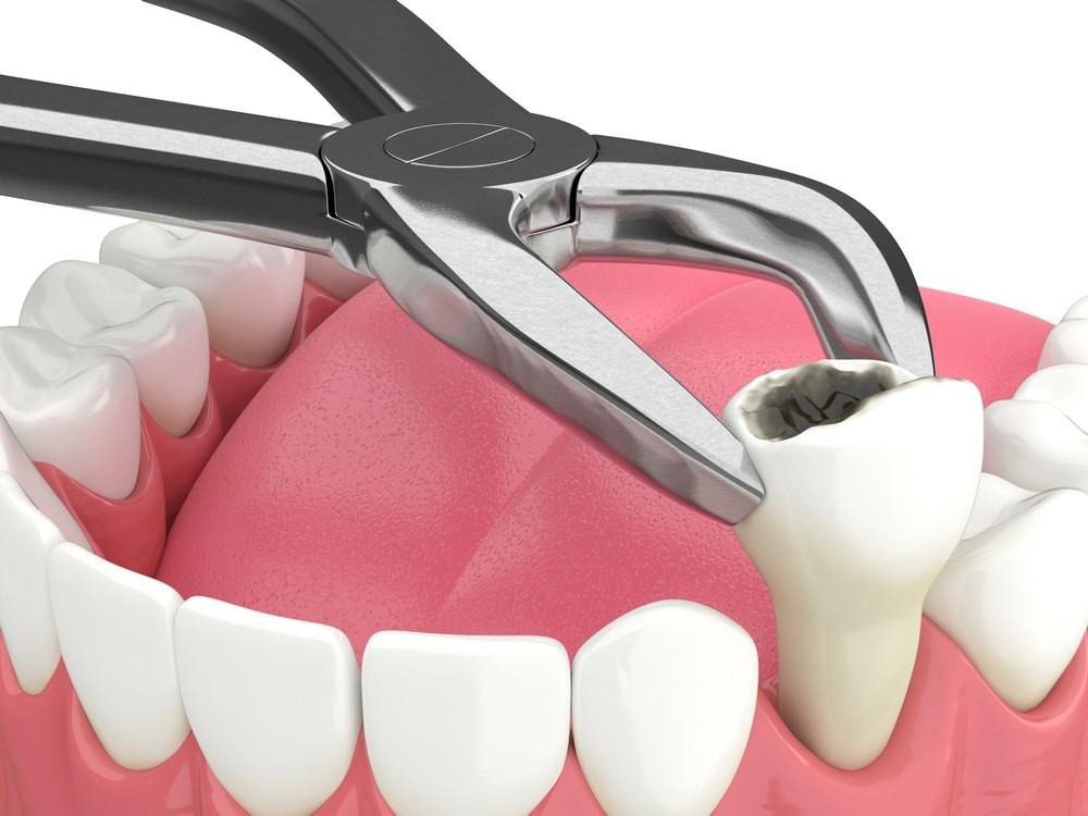 chirurgie dentara sibiu, dr sorina preda chirurgie dentara, extractii dentare sibiu