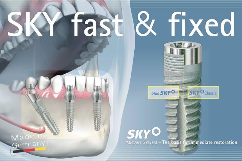 implant dentar sibiu, implant dentar bredent sibiu, implantologie sibiu, dr sorina preda implantolog