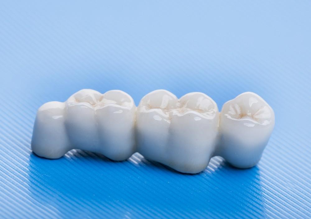 implant dentar sibiu, implant dentar bredent sibiu, dr sorina preda implantologie