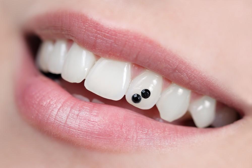 estetica dentara sibiu, fatete dentare sibiu, dr sorina preda sibiu, stomatolog sibiu, dentist sibiu