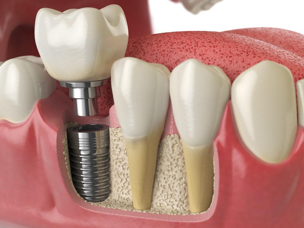 implant dentar sibiu, dr sorina preda implantologie, implant dentar bredent sibiu