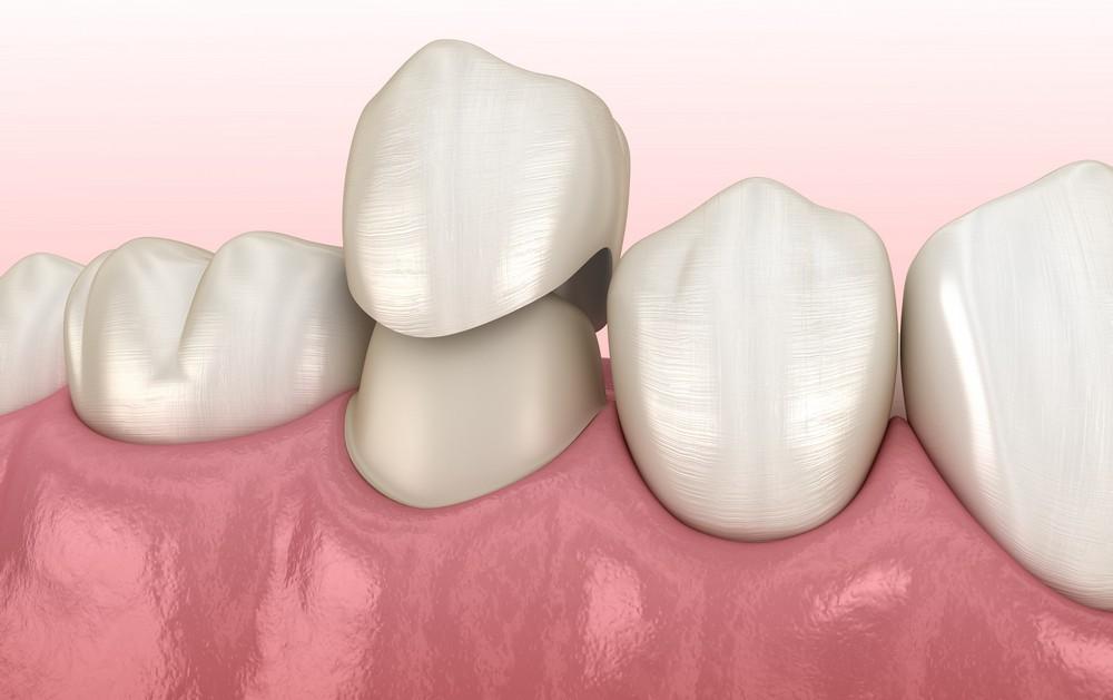 coroane dentare sibiu, protetica dentara sibiu, dr sorina preda protetica dentara